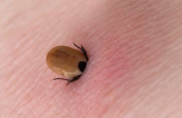 Tick going inside a human body through the skin