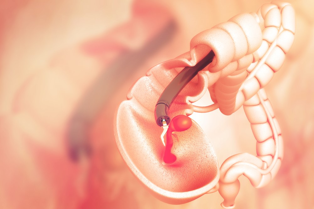 New Advances In Screening For Colorectal Cancer
