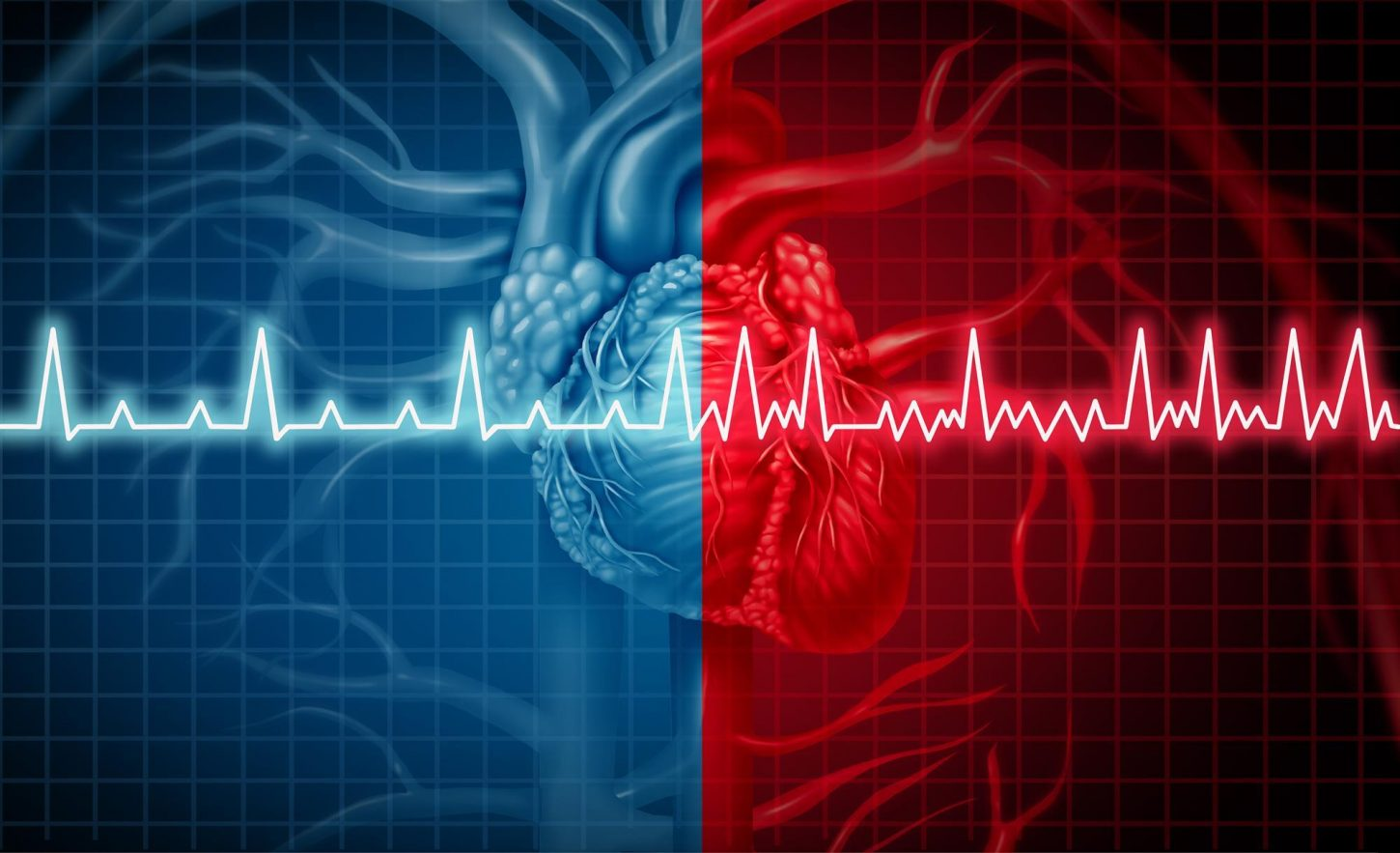 atrial fibrillation and a heart